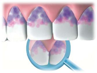 Гигиена полости рта - Студенческий портал