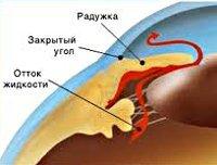 Глаукома - Студенческий портал