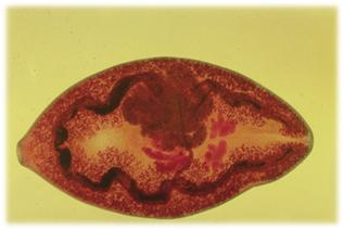 Заболевания, вызванные паразитическими круглыми червями - Студенческий портал