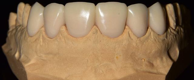 Кариес зубов - Студенческий портал